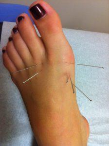 acupuncture-gout